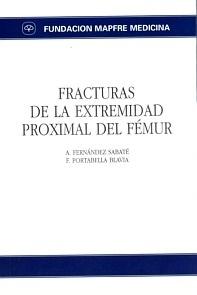Fracturas de la Extremidad Proximal del Femur
