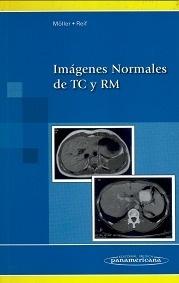 Imagenes Normales de TC y RM