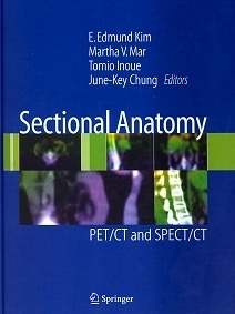 """Sectional Anatomy """"PET/CT and SPECT/CT"""""""