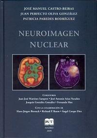 Neuroimagen Nuclear