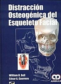 Distraccion Osteogenica del Esqueleto Facial + Cd-Rom