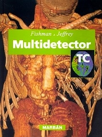 Multidetector TC