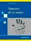 Tumores de la Mano
