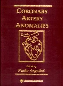 Coronary Artery Anomalies