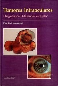 Tumores Intraoculares.Diagnóstico Diferencial