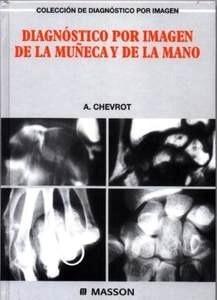 Diagnóstico por Imagen de la Muñeca y de la Mano