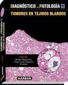 Diagnostico en patología. Tumores en Tejidos Blandos