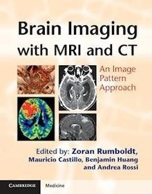 """Brain Imaging with MRI and CT """"An Image Pattern Approach"""""""
