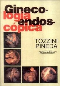 Ginecología Endoscópica