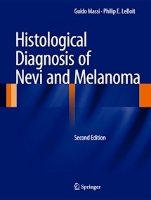 Histological Diagnosis of Nevi and Melanoma