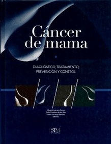 """Cáncer de Mama """"Diagnóstico, Tratamiento, Prevención y Control"""""""