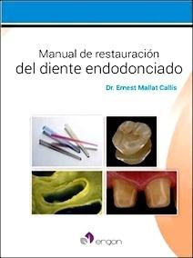Manual de Restauración del Diente Endodonciado