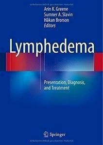 "Lymphedema ""Presentation, Diagnosis, And Treatment"""