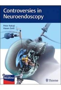 Controversies In Neuroendoscopy