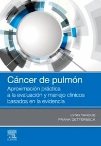 """Cáncer de Pulmón """"Aproximación Práctica a la Evaluación y Manejoclínicos Basados en la Evidencia"""""""