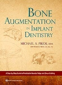 """Bone Augmentation In Implant Dentistry """"A Step-by-Step Guide to Predictable Alveolar Ridge and Sinus Grafting"""""""