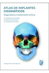 """Atlas de Implantes Cigomáticos """"Diagnóstico y Tratamiento Clínico"""""""