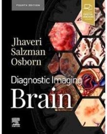 Diagnostic Imaging. Brain