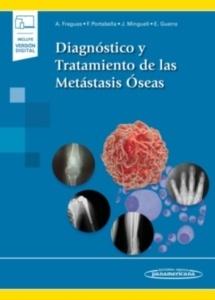 Diagnóstico y Tratamiento de las Metástasis Óseas