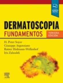 Dermatoscopia. Fundamentos